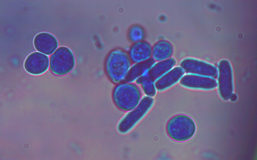 Saccharomyces_cerevisiae100xPNF_1_0bis.jpg