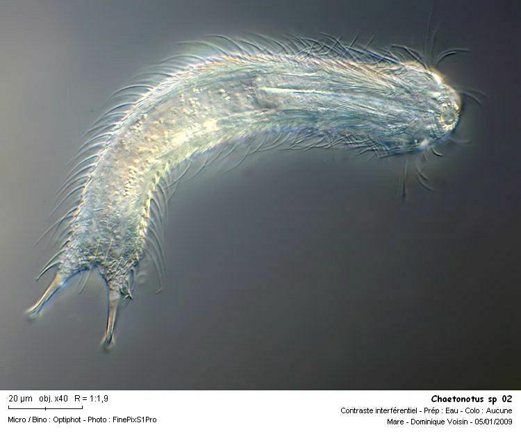 chaetonotus_sp_02.jpg