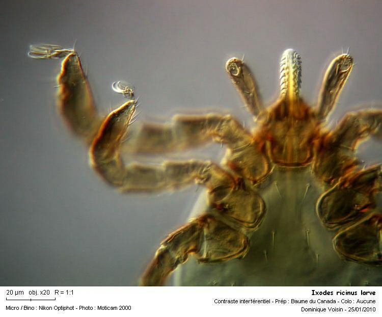 2_ixodes_ricinus_larve.jpg