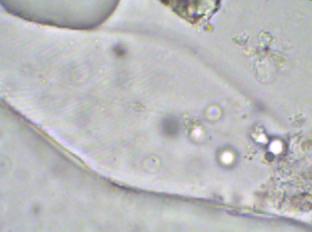 Pleurosigma100_3R.jpg