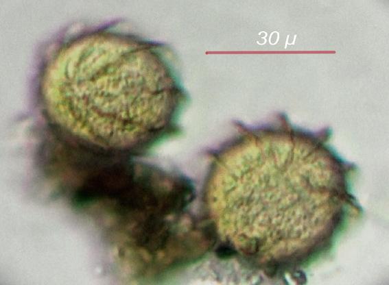 micro cyst3.jpg
