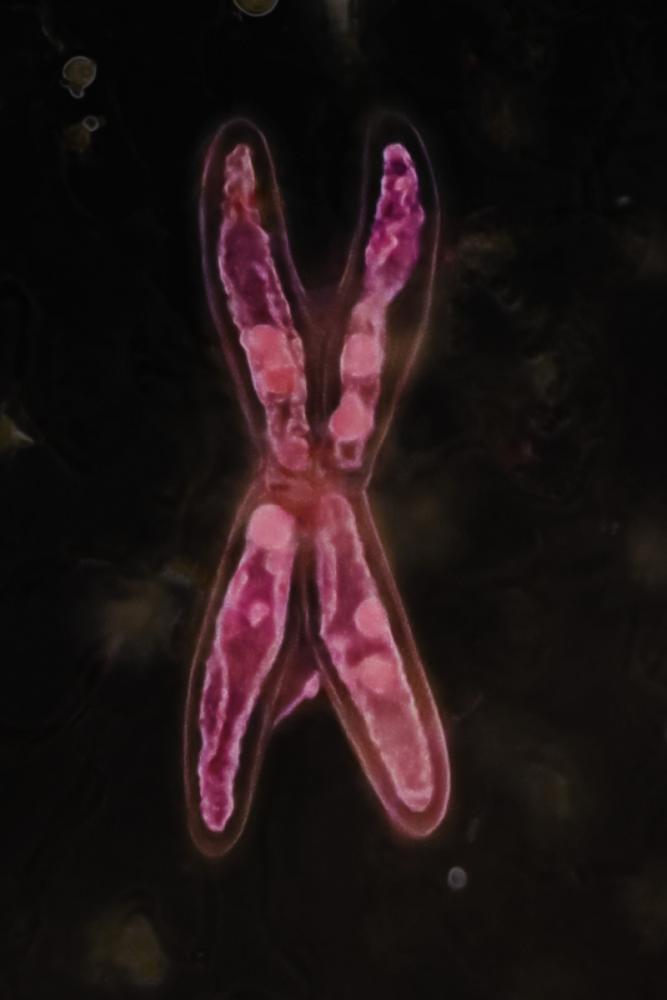 aldrovanda glandes X 4_V2.jpg