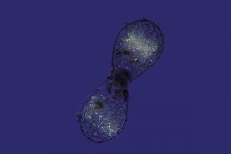 amibe dupli euglypha 3_V9.jpg