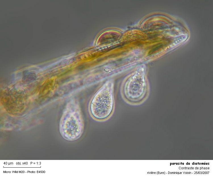 parasite_de_diatomees.jpg