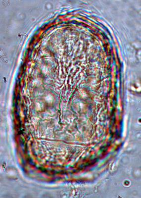 Grandes_cellules_20_80_1_2.jpg