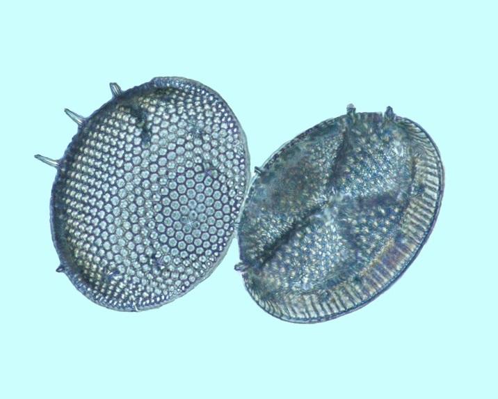 diatomees_fossiles_dunkirk_maryland_actinoptychus.jpg