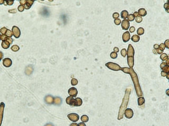 moisissures au plafond algues microscopiques i mikroscopia. Black Bedroom Furniture Sets. Home Design Ideas
