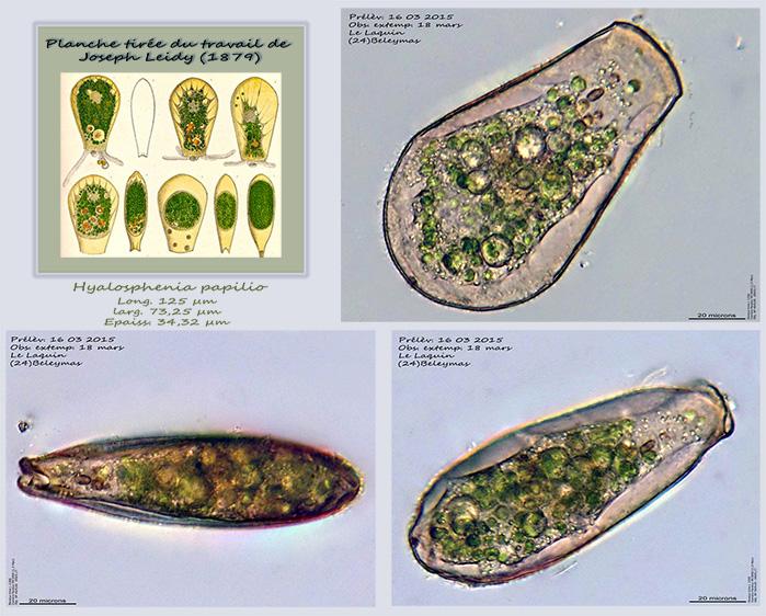 Hyalosphenia papilio MikrQ10..jpg