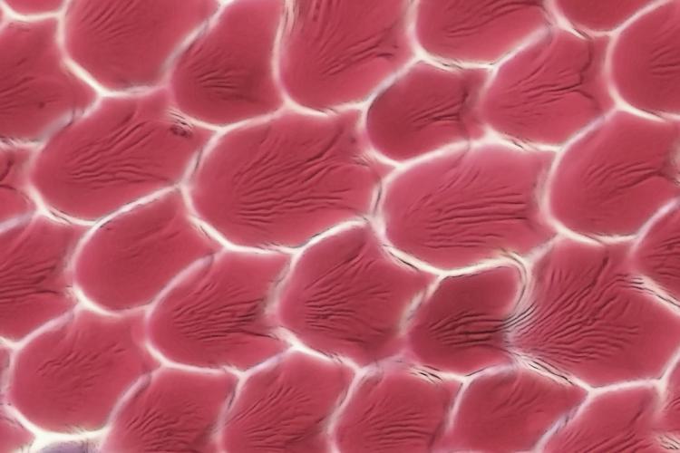 cephalotus glandes capuchon 8.jpg
