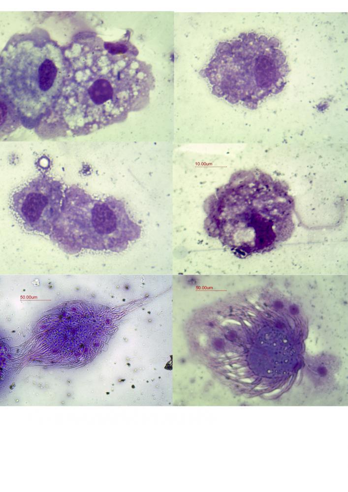 CoelomocyteMGG.jpg