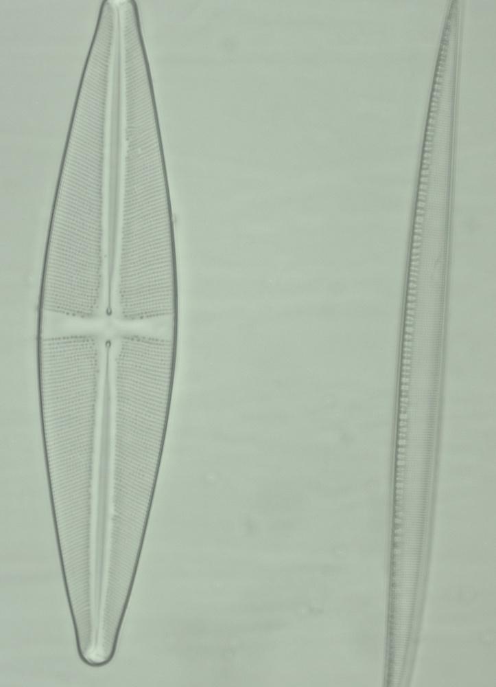 Les deux diatomées.jpg