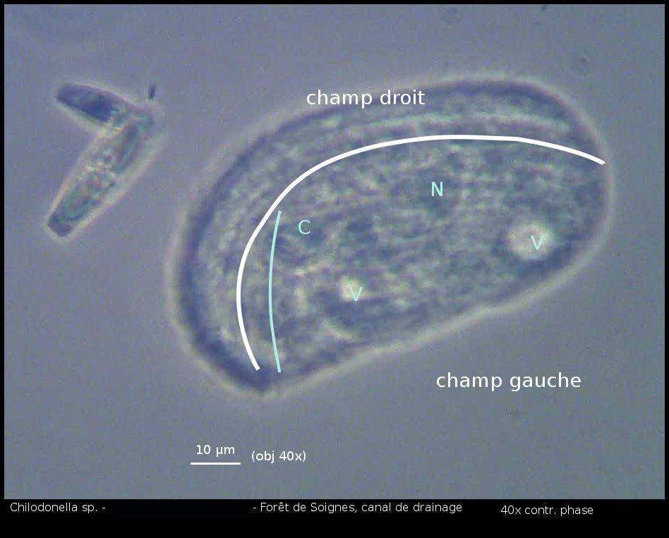 vlc-0410-chilodonella-sp2-00538.jpg