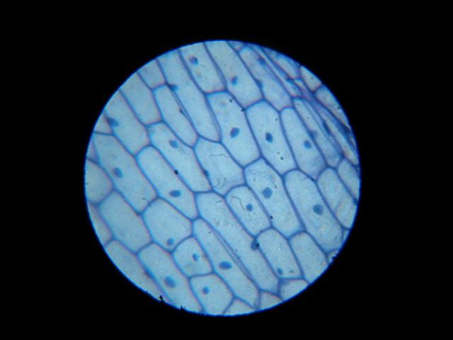 La varicosité des organes génitaux extérieurs la grossesse