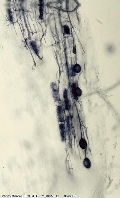 EpilobiumGlomus15.jpg