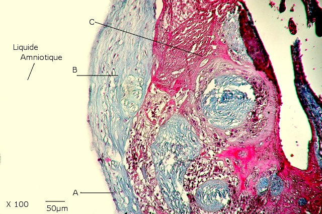 placenta texte 4 .jpg