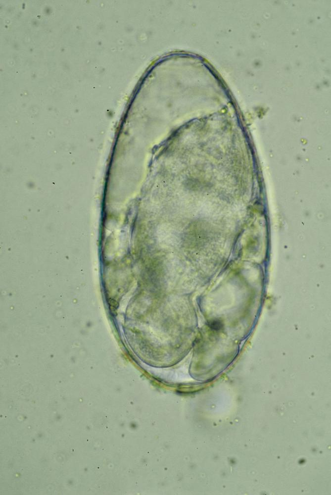 Paramphistome-jour-21.jpg