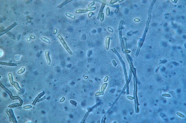 moniliella spores micro.jpg