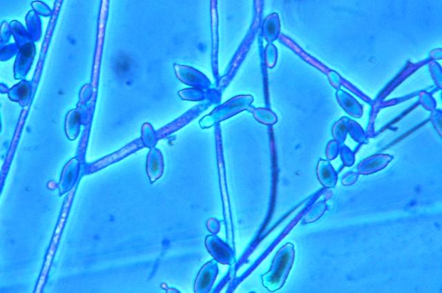 moniliella spores levures micro.jpg
