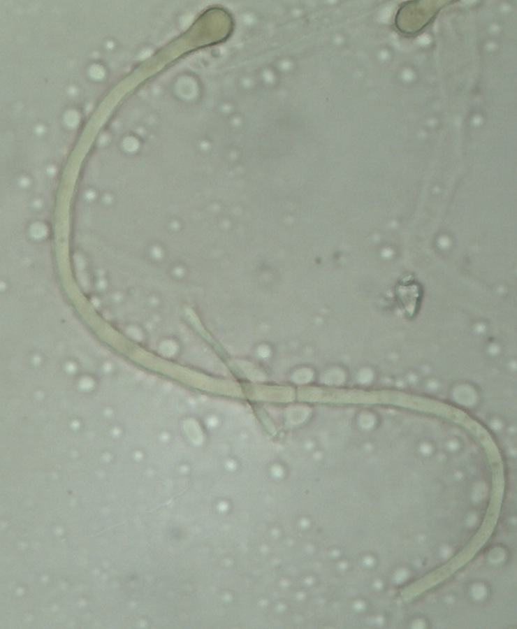 Paxina acetabulum 2.jpg