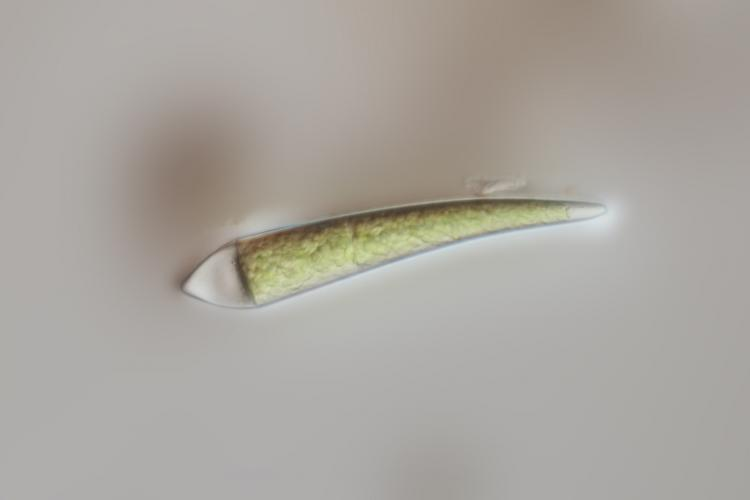 zygospore desmidée A 3.jpg