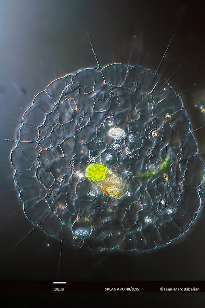 Actinophrys vesiculata 40 DIC 05-05-16b.jpg