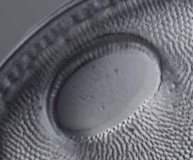 2017-05-26 21_42_05-Traitement d'images pour les diatomées. - - Logiciels et Protocoles - Mikroscopi.png