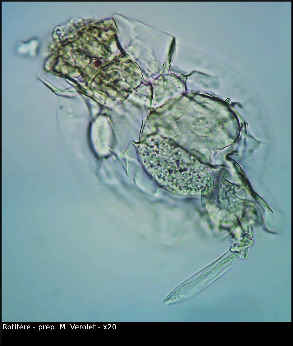 vlc-rotifere-0610-00144.jpg