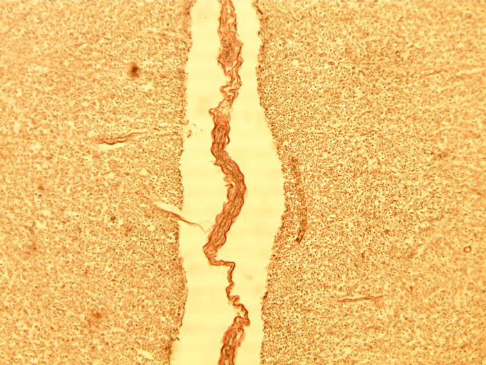 nerf spinal3.jpg