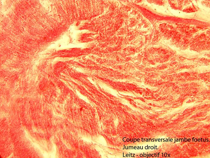 muscle du mollet.jpg