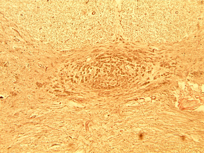 nerf spinal faisceau septo-marginal.jpg