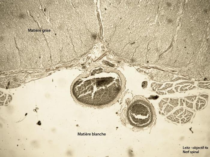 Nerf Spinal 6a.jpg