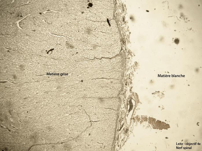 Nerf Spinal 5a.jpg