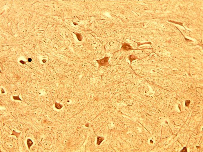 nerf spinal1.jpg