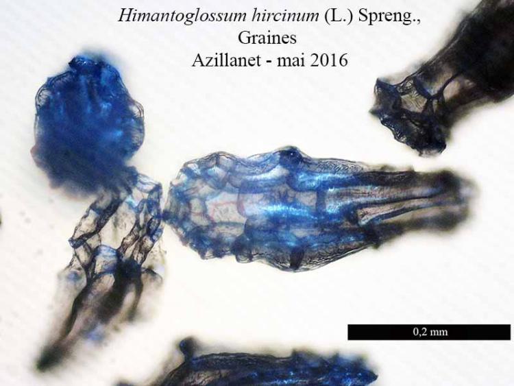 Himantoglossum hircinum-9aGr-Azilanet-05 2016-LG.jpg