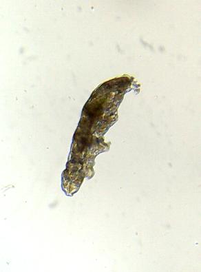 Macrobiotus1.png