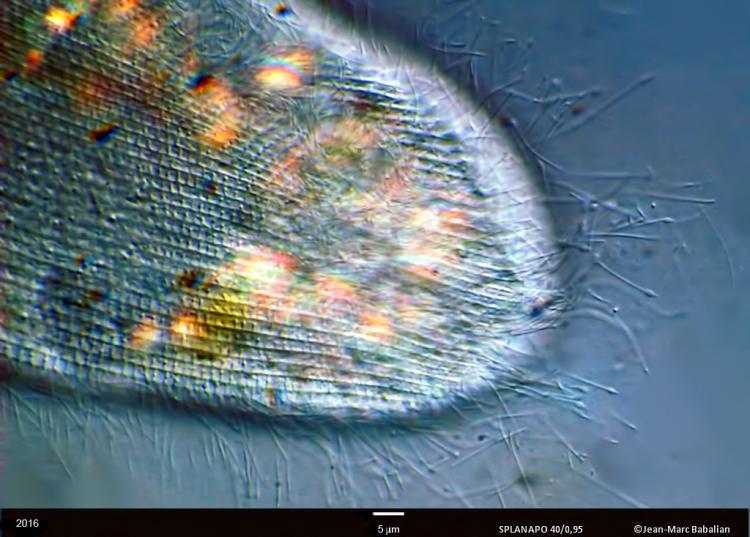 trichocyste 40 DIC 25-06-16b.jpg