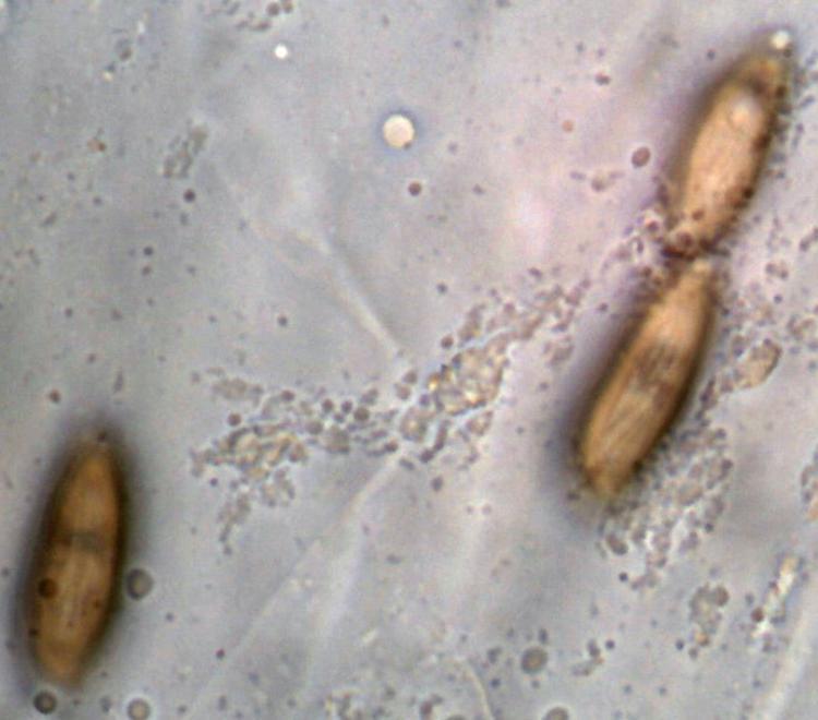 Xerocomus_ripariellus traitée.jpg