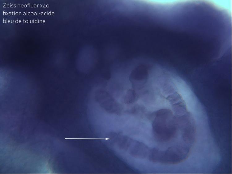 21 juin 21  chromosome chironome fixation acétique violet x40 3.jpg