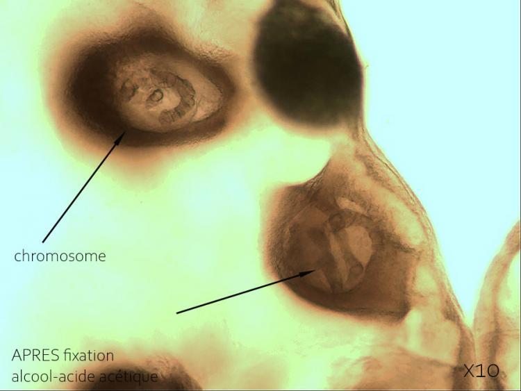11 juin 21 glande salivaire AVEC fixation 2.jpg