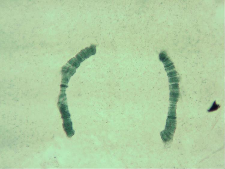 16 juin 21  chromosome fixation hydrolyse BM  x20  2.jpg