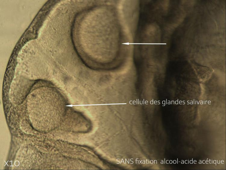 11 juin 21  glande salivaire SANS fixation.jpg