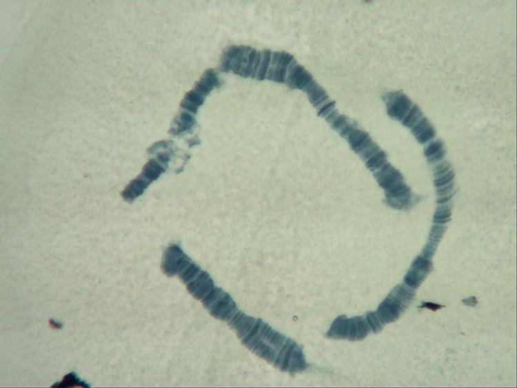 16 juin 21  chromosome fixation hydrolyse BM  x20++2  2.jpg