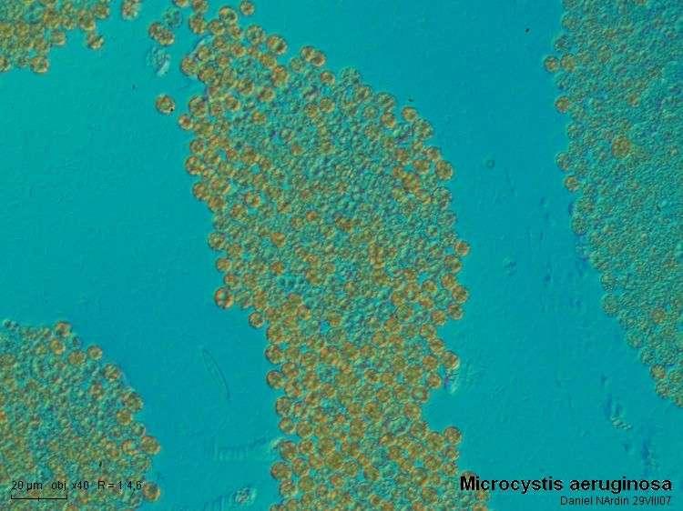 Microcystis_aeruginosa_40xB.jpg