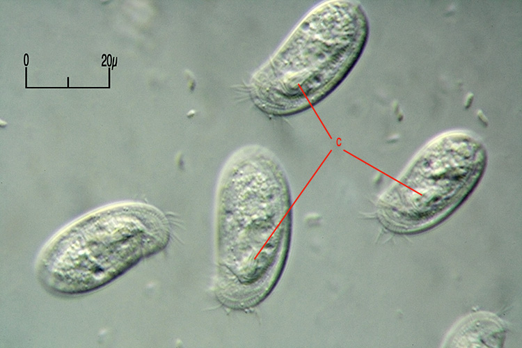Chilodonella01.jpg