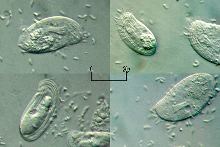 Chilodonella02.jpg
