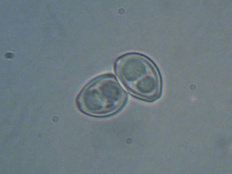 spore-lepiotedeguenillee.jpg