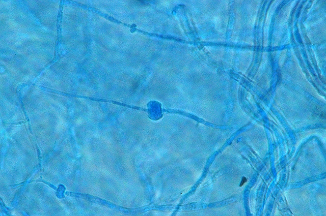 monilia zygospore 9.jpg