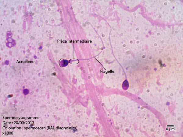 Spermocytogramme 2 x1000.jpg