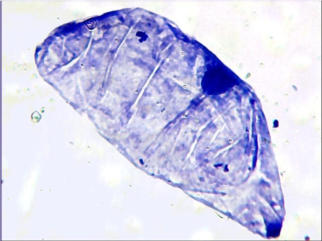 cel-orchis-vertviolet2-2011.jpg