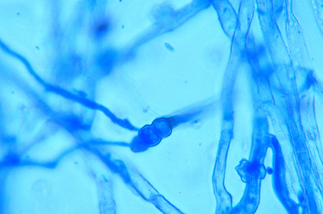 berce  chlamydospore 4.jpg